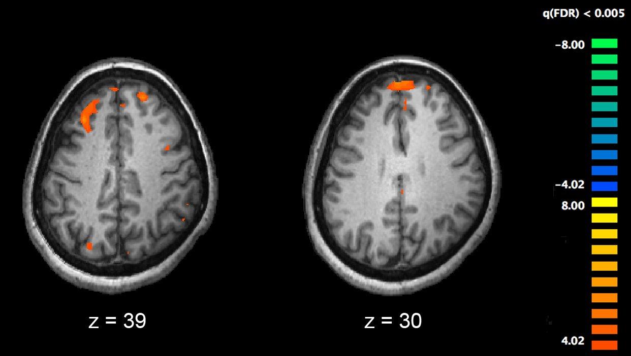 Gezieltes kognitives training profitieren Patienten mit schwerer Schizophrenie