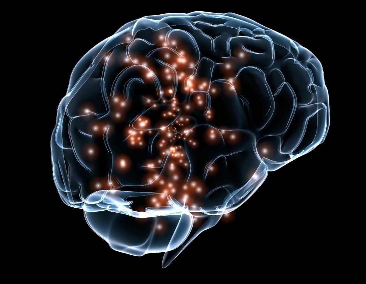 Video: Forscher entdecken seltene genetische Erkrankung des Gehirns,