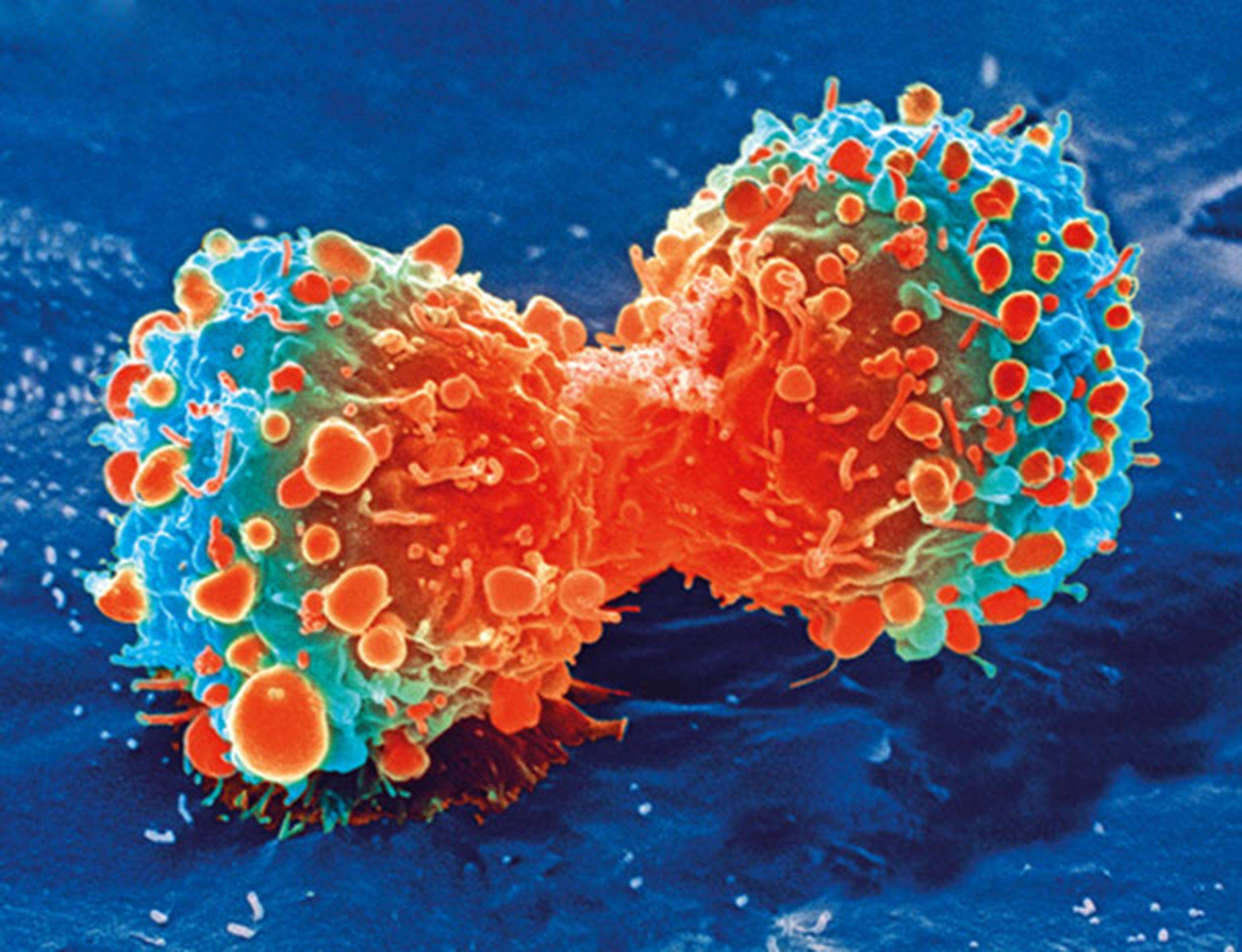 Entwickelt, Zellen des Immunsystems, Ziel Breite Palette von pädiatrischen festen Tumoren in Mäusen
