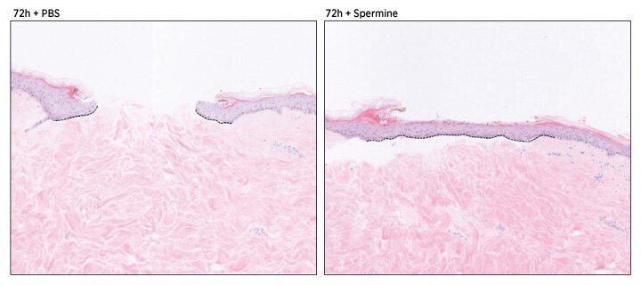 Balance für biomolekulare Signale stimuliert die Heilung durch festlegen von skin-Zellen in Bewegung