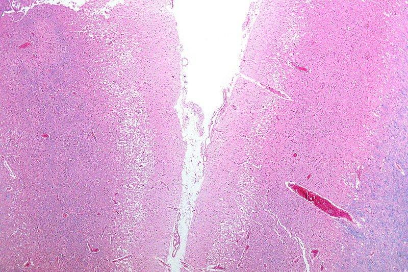 Infektion während der Geburt verbunden mit einem größeren Risiko von Schlaganfall, nach der Lieferung