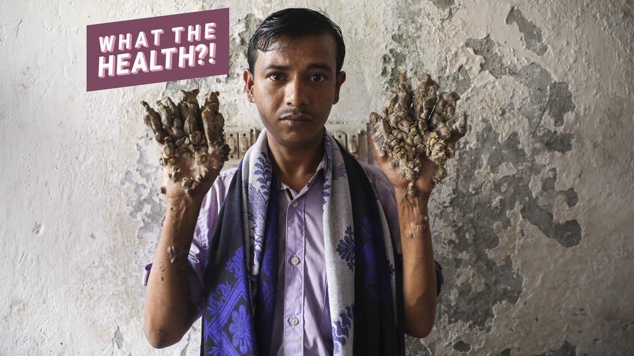 Baum Mann Hatte 25 Operationen für Seltene Erkrankung, die Bewirkt, Zweig-Wie Wucherungen an Seinem Körper