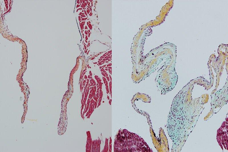 Forscher entdecken neue Immunzellen, die wesentlich sind für die Bildung von Herzklappen