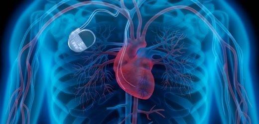 Achtung: Gesundheitsrisiko für Herzpatienten – Medtronic ruft 157.000 Herzschrittmacher weltweit zurück