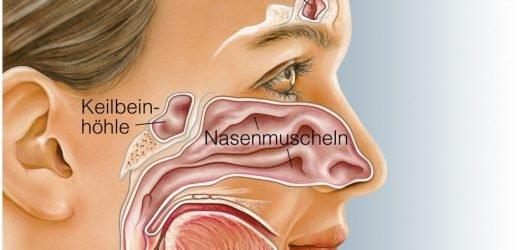 Mysteriöses: Warum diesem Patienten ein Zahn in der Nase wächst