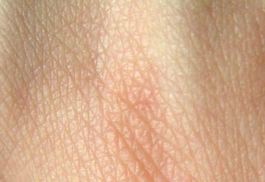 Weltweit erste Haut atlas, um zu sehen das Licht des Tages