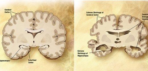 Studie findet test von protein-Ebene in das Auge ein potentieller Prädiktor für den (zukünftigen) Alzheimer-Krankheit
