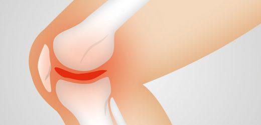 Raupen halten konnte, das Geheimnis um die neue Behandlung für osteoarthritis