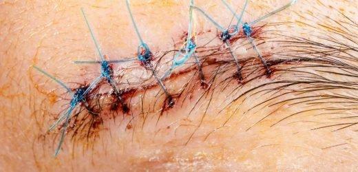 Mutation: Patientin hat tatsächlich übermenschliche Wundheilung und keine Schmerzen