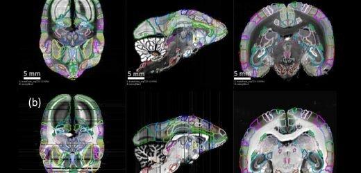 Detaillierte neue Primaten-Gehirn-atlas könnte zu Krankheiten führen Erkenntnisse