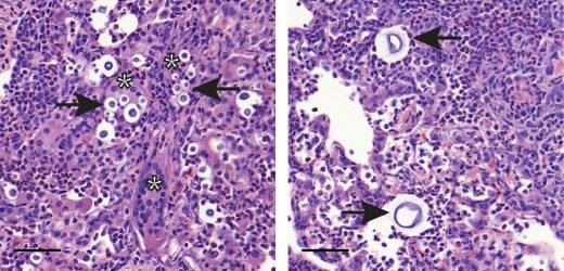 Entzündliche Monozyten spielen widersprüchlichen Rollen in der Pilz-Infektionen