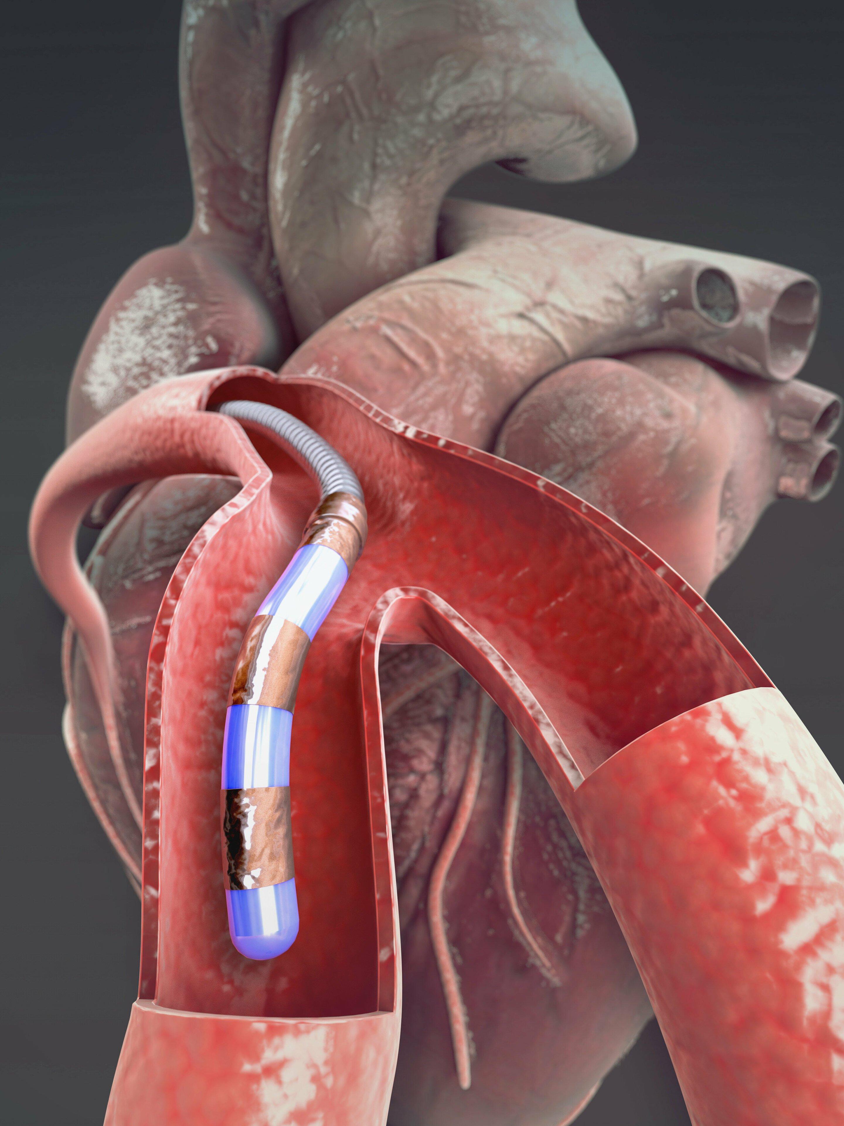 Die überwindung von Herz-Kreislauf-Krankheit, die mit einer magnetisch steuerbaren Führungsdraht microrobot