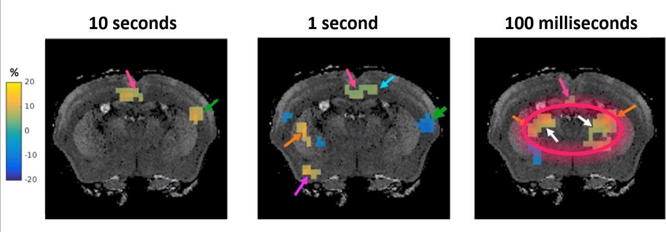 Grundlegend neue MRT-Verfahren entwickelt zur Messung von Gehirn-Funktion in Millisekunden