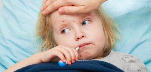 Als US-Masern-Fällen auf neue high-Experten warnen, die Krankheit kann tödlich sein