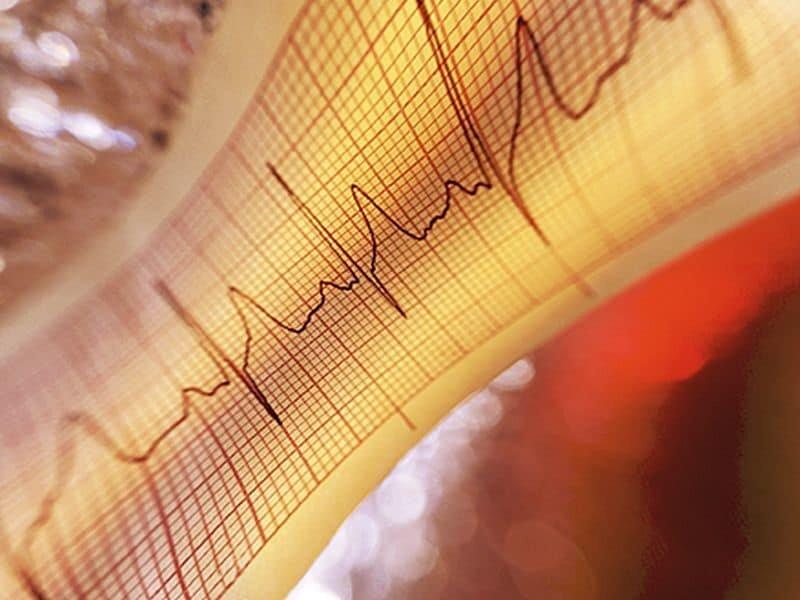 Cardiac-specific comorbidity index beats generische Indizes