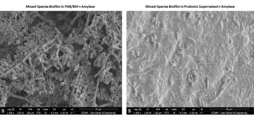 Zum Patent angemeldete probiotische stören könnte Morbus Crohn Biofilmen