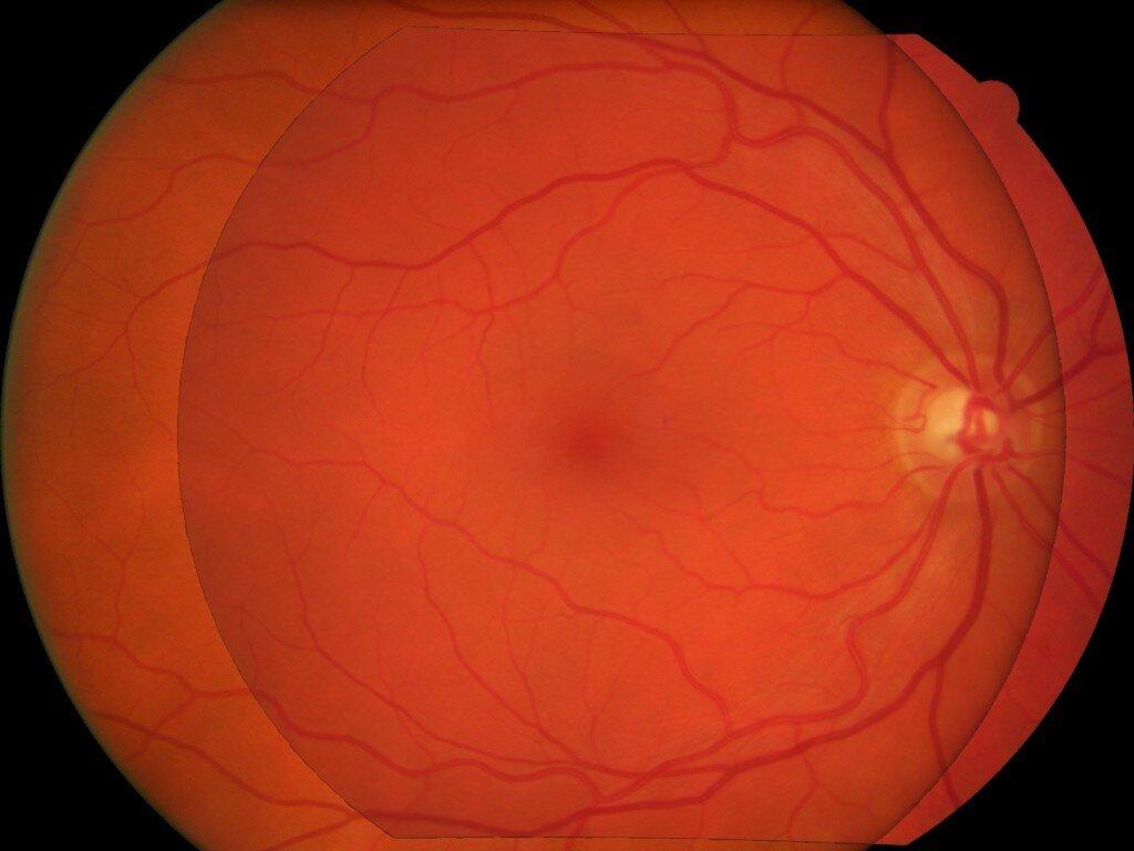 Überlagerung von eye fundus-Bilder für die längs-Analyse von großer public health-Datenbanken
