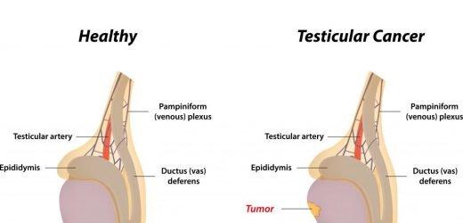 Vier Schritte um Hodenkrebs selbst zu ertasten