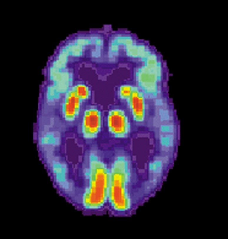 Gehirn-änderungen im Zusammenhang mit der Alzheimer-Jahre, bevor Symptome auftreten