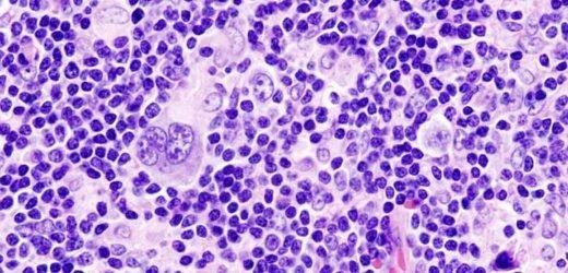 Warum Hodgkin-Lymphom-Zellen, die unkontrolliert wachsen