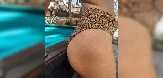 Diese 30-Jährige ein Foto Gepostet von Ihrem Po Schwangerschaftsstreifen zu Beweisen, Sie Sind ein Normaler Teil des Alterns