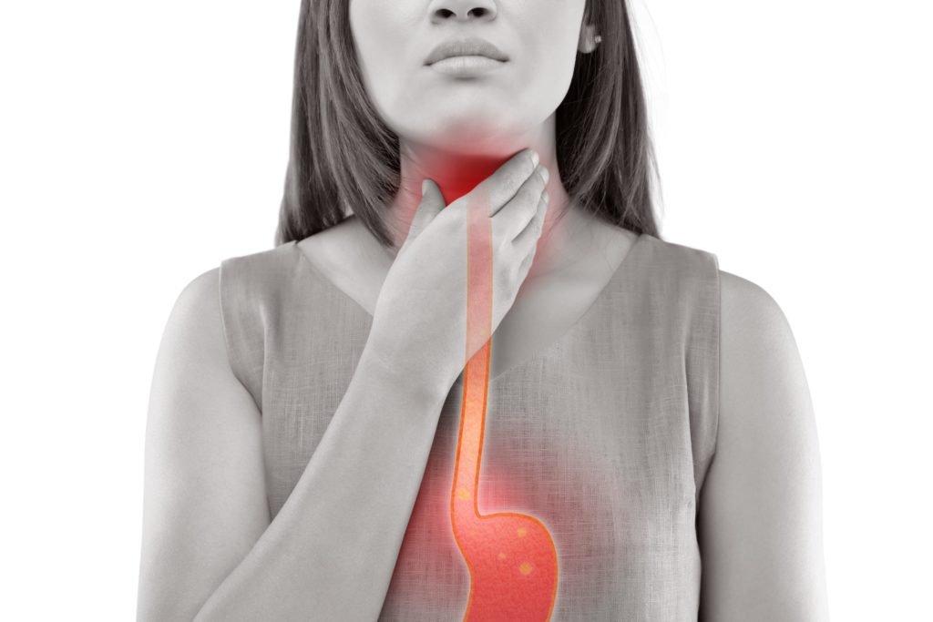 Refluxkrankheit: So lässt sich Sodbrennen vermeiden