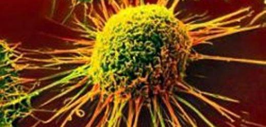 Obamacare führte zu einer besseren Krebs-Ergebnisse: Studien