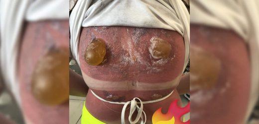 Sie Kann Nicht Unsee Dieses Mädchen Schweren Sonnenbrand Mit Hervortretenden Blasen Auf Dem Rücken