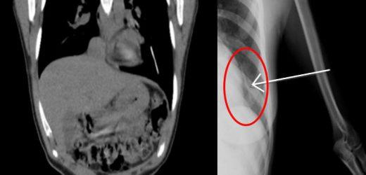 Diese Frau Empfängnisverhütung Implantat landete in Ihren Lungen—Heres, Wie Das Passieren Kann