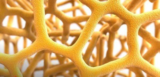 AHA news: Hier ist der Grund, warum Schlaganfallpatienten achten müssen, um die Gesundheit der Knochen