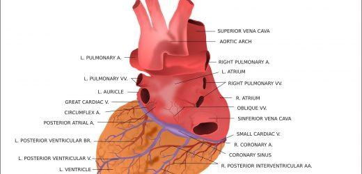 Tod oder reinfarction Verzögerungen von mehr als einem Jahr mit einer koronaren stenting