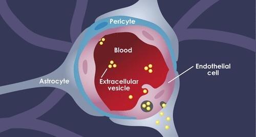 Einzelheiten der Studie, wie exosomen, ausgelöst durch den tumor, tricks Zellen in die Blut-Hirn-Schranke in die unter Ihnen bis