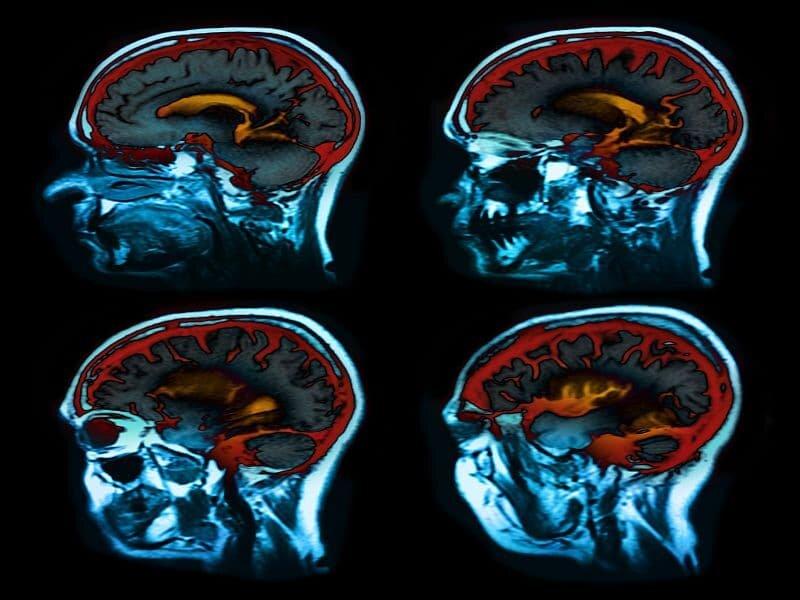 Serum-biomarker-verbunden mit Gehirn-Atrophie bei multipler Sklerose