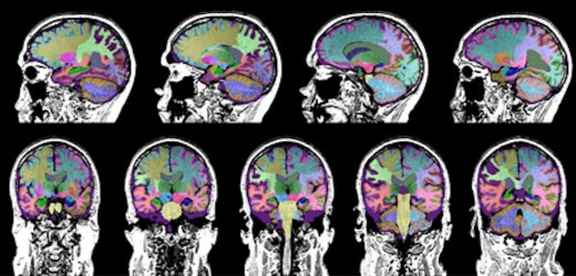 Studie identifiziert Hirn-Trauma als Ursache der Demenz in einigen älteren Erwachsenen