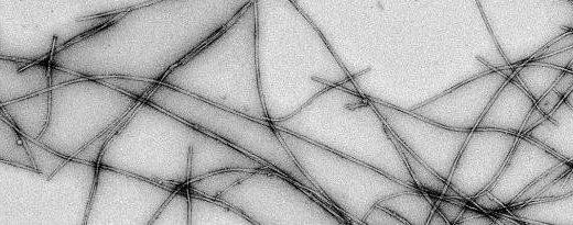 Entschlüsselung der frühen Stadien der Parkinson-Krankheit ist eine Frage der Zeit