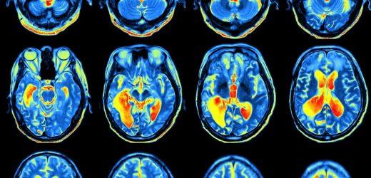 Wie unser Gehirn an Dinge erinnern, hängt davon ab, wie wir lernen