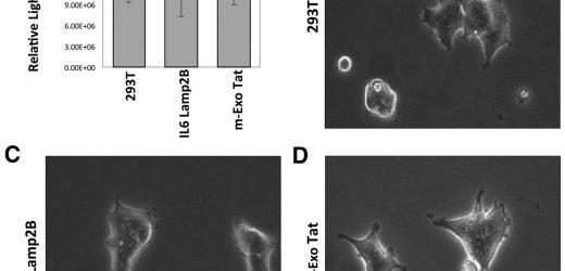 Auswirkungen von exosomal HIV-1-Tat die expression auf die menschlichen zellulären proteoms