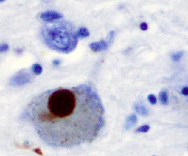 Wegweisende klinische Studie zur Behandlung von Psychosen bei Parkinson-Patienten mit cannabidiol