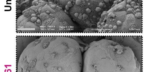 Cryptosporidium: auf den Fersen von einem neuen anti-infektiöse