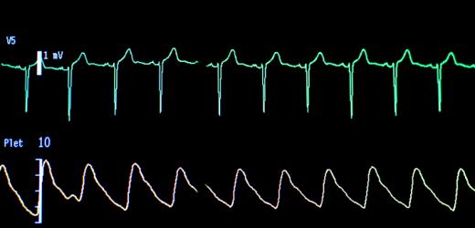 Geisinger Studien zeigen AI deep learning Modell hilft Kardiologen erkennen von Vorhofflimmern