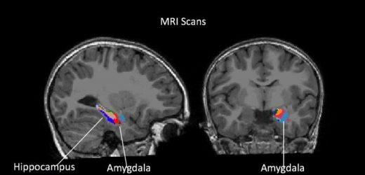 Gehirn Ahnung, Signale von Angst, depression in einigen Kinder