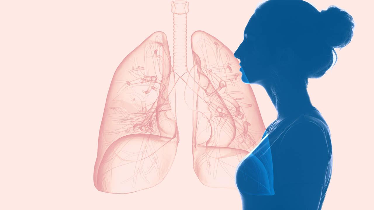 Diese 3 Frauen Waren Jeder Diagnostiziert Mit Fortgeschrittenem Lungenkrebs Obwohl Sie Nie Geraucht