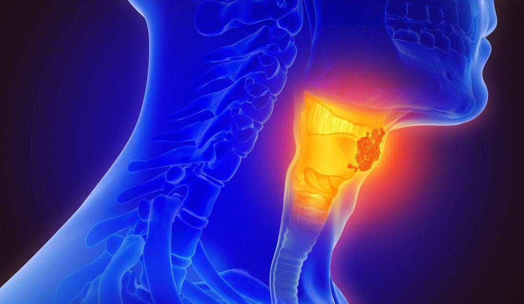 Studie zeigt checkpoint-inhibitor verlängert das überleben von Patienten mit bestimmten Kopf-Hals-Karzinomen