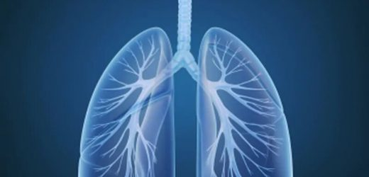 US-Staaten können mehr tun, um zu verhindern, Behandlung von Lungenkrebs