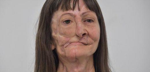 Aus dem 3D-Drucker: Frau bekommt nach Krebs-Erkrankung neues Gesicht