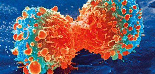Studie findet neue molekulare therapeutische Ziel für Darmkrebs