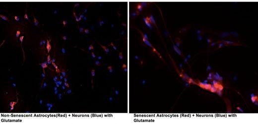 Forscher entdecken, wie die zelluläre Seneszenz führt zu neurodegeneration