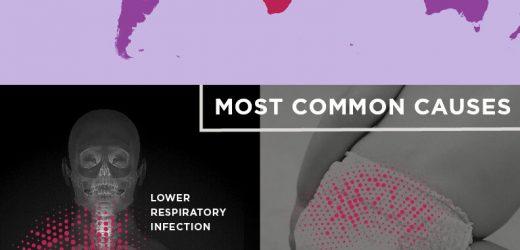 Sepsis im Zusammenhang mit einer von fünf Todesfälle weltweit, doppelte der vorherigen Schätzung
