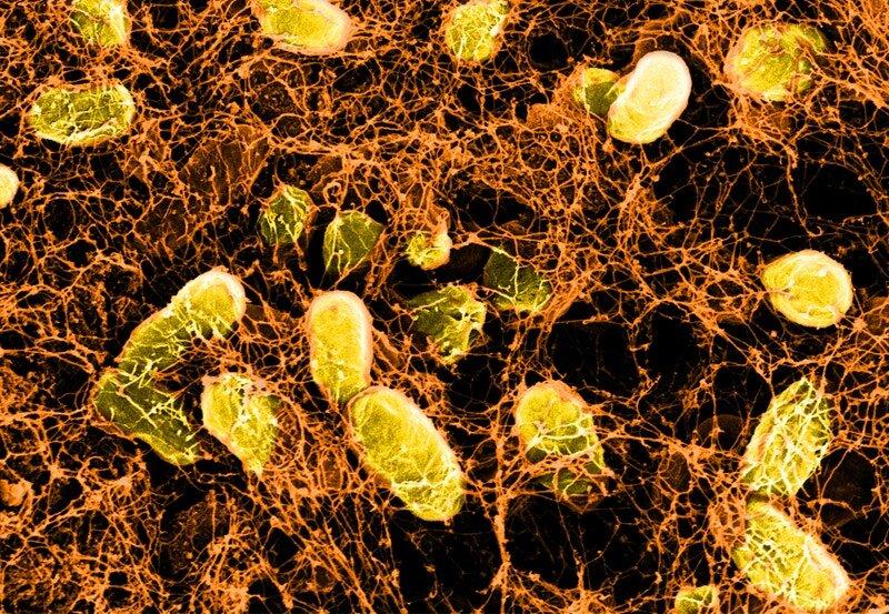 Mit dem Immunsystem, Hydrogele, und Bakterien, zu behandeln und zu verhindern, Darm-Erkrankungen