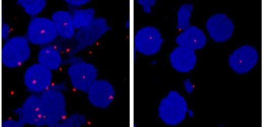 Klinische Studie entlarvt die tödliche Nieren-Krebs Achillesferse